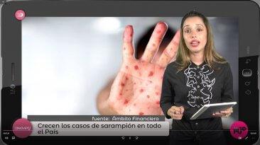 Mujer con camisa negra y manos con sarampión